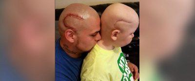 HT josh marshall scar tattoo